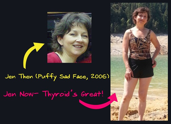 Hypothyroid (Puffy Face Picture)
